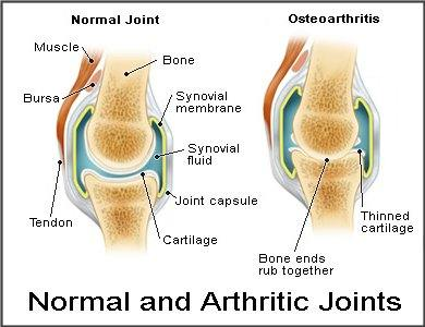 knee-joints_00