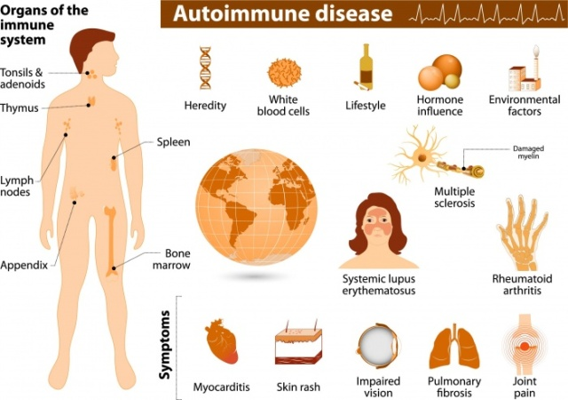 Autoimmune-Disease-Featured-Slider-e1489690102560