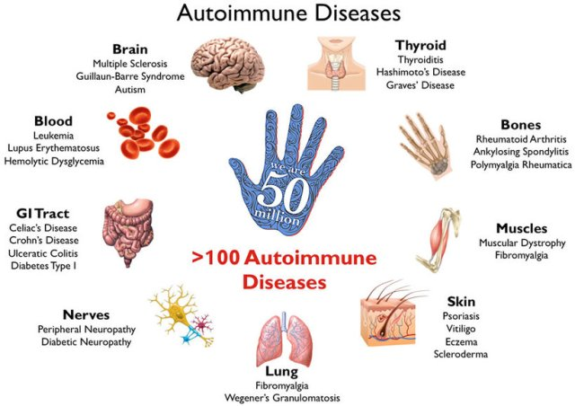 Autoimmune+disease+part+2